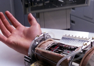Watch 'Star Wars' Become Reality With These Bionic Hand Transplants
