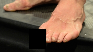 Here's The Disgusting Toe Injury Michael Bisping Suffered During UFC Fight Night 72