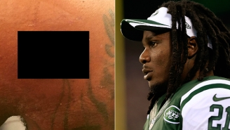 Chris Johnson Shares A Disgusting Photo Of His Bullet Wound On Instagram