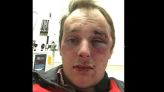 This Fan Claims He Was Brutally Beaten By Police During The Ole Miss-LSU Game