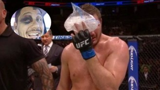 It Only Took Three Days For Matt Mitrione's Eye To Look 'Normal' Again