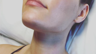 Nikki Bella Shared A Picture Of Her 'Warrior Wound' From Neck Surgery