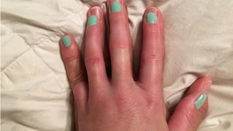This Husband Did A Sweet And Unique Gesture For His Wife Who Lost A Pinky