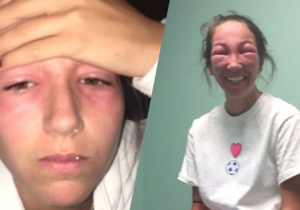 A Girl Got Poison Ivy In Her Eyes And Her Sister Delighted In Her Mutated New Look