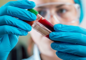 An Early Alzheimer's Blood Test Is Showing 100% Accuracy In Trials