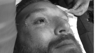 Heath Slater Suffered A Nasty Eye Injury At A WWE Live Event In Maine