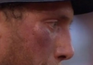 Hunter Pence Fouled A Ball Off His Face So Hard You Can See The Seam Imprints
