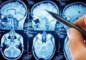 An Experimental New Drug May Soon Make Alzheimer's A Treatable Condition