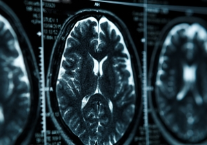 A New Test For Alzheimer's Can Predict When The Disease Will Hit