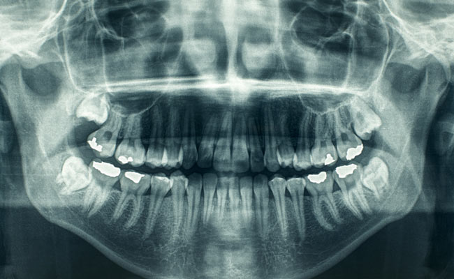 Why Tooth Banking Might Just Be The Next Wave In Stem Cell Research
