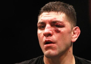 Nick Diaz Is Eligible To Return To UFC On 4/20, Like It's Meant To Be