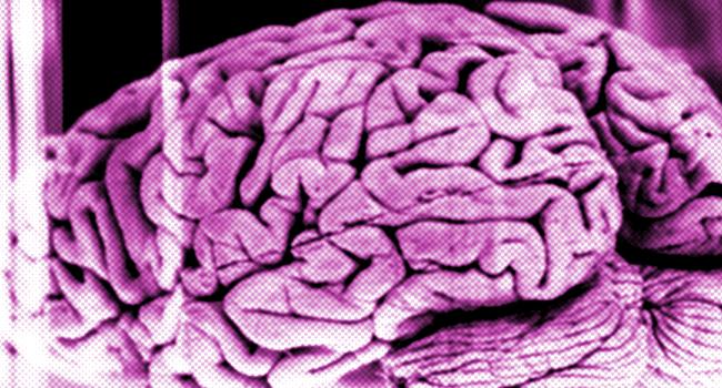brains kept alive outside body